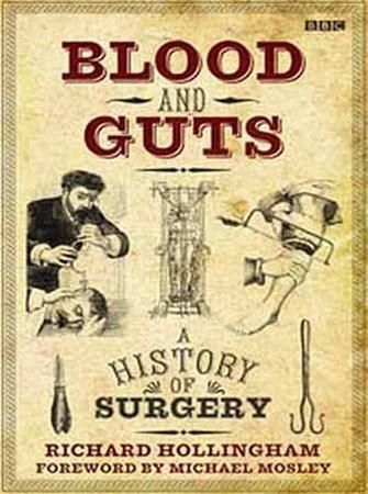 Скачать с letitbit  BBC: История хирургии. Кровоточащие сердца / Blood and  ...